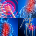 CBD and Fibromyalgia